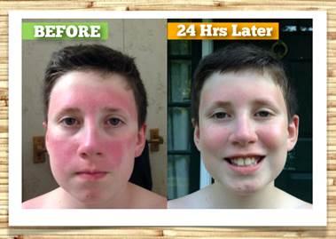 after-burn