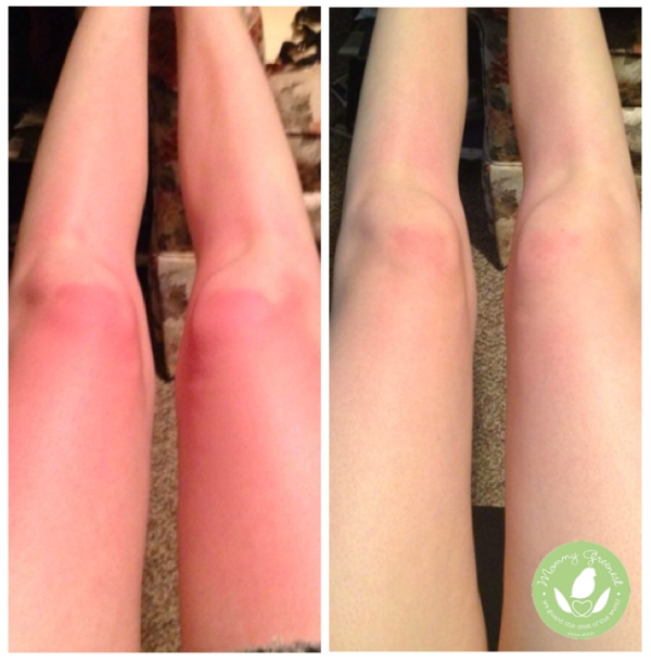 Burnt? Why Your Sunscreen Didn't Work – Topricin